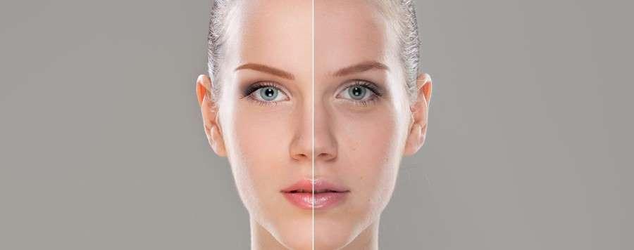 come funziona la biorivitalizzazione viso