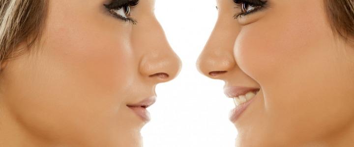 trattamento rinofiller naso